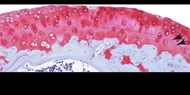 cartilage-slide